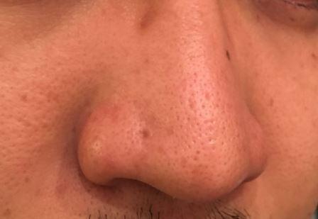 リファクリア ReFa CLEAR MTG 電動洗顔ブラシ