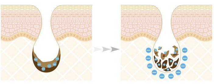 ReFa CLEAR -リファクリア- 毛穴を開かない電動洗顔ブラシ