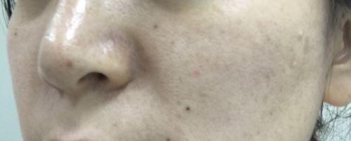 ReFa CLEAR -リファクリア- 毛穴を開かない電動洗顔ブラシ 体験