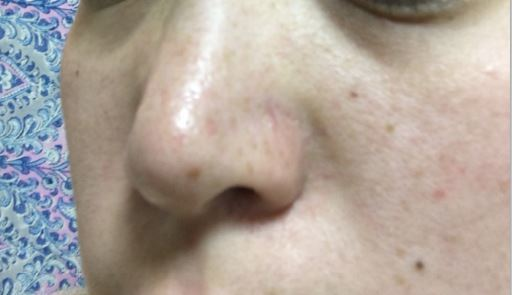 ReFa CLEAR -リファクリア- 毛穴を開かない電動洗顔ブラシ 効果